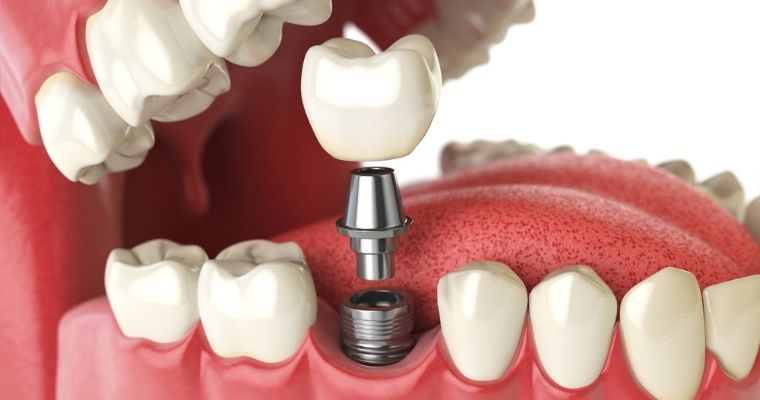 What is Computer-Guided Dental Implant Placement?