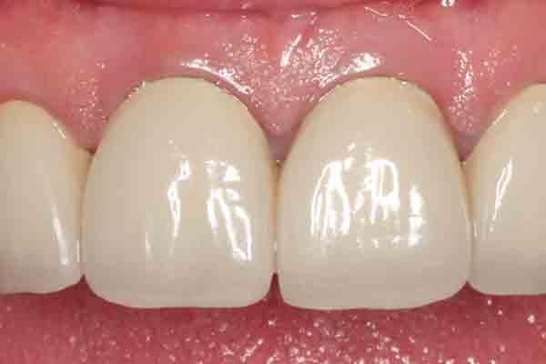 Case 10 Pre-op Image