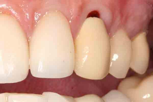 Case 12 Pre-op Image