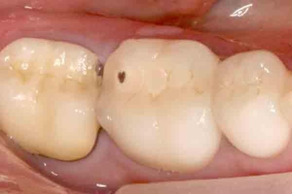 Case 3 Pre-op Image