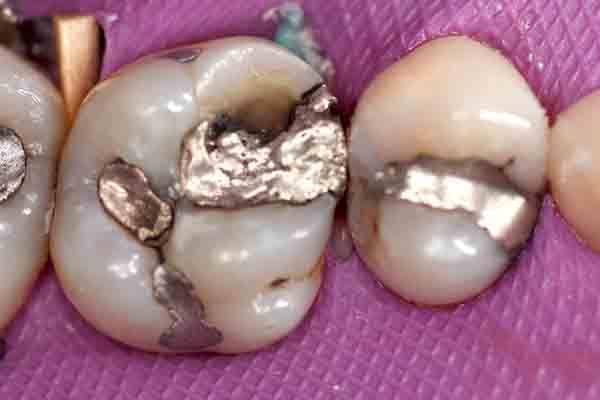 Case 4 Pre-op Image