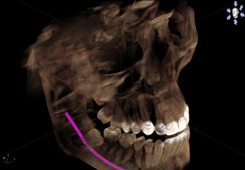 CBCT 3D Scan Implanted