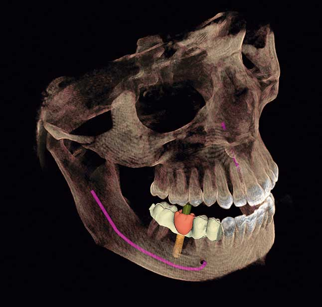 A 3D xray to show how dental implants in Richardson TX are placed.