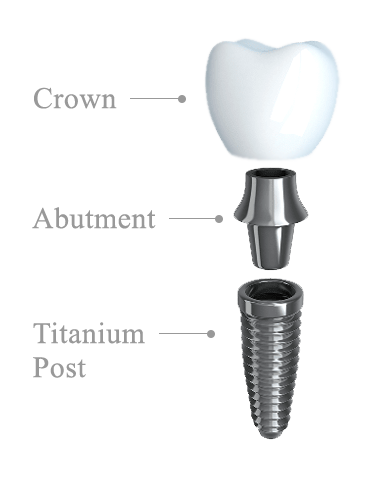Dental Implant anatomy white